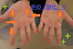 手の酸化.jpg